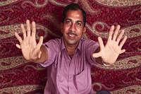 इस व्यक्ति की हैं 28 उंगलियां, लोग मानते हैं सौभाग्यशाली