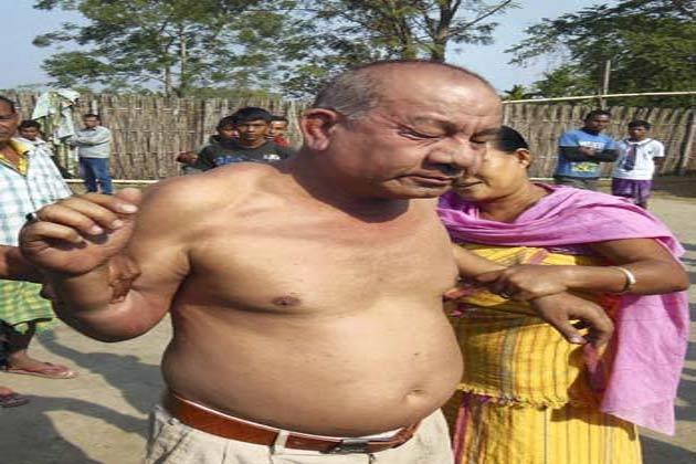 असम के चिरांग में कांग्रेस नेता विक्रम सिंह ब्रह्मा पर बलात्कार का आरोप लगने के बाद लोगों ने उसकी पिटाई कर दी। आरोप है कि विक्रमसिंह ब्रह्मा ने एक महिला के साथ उसके घर में घुसकर बलात्कार किया। इसके बाद महिला ने शोर मचाया तो लोगों ने आरोपी नेता विक्रमसिंह ब्रह्मा को धर दबोचा और उसकी जमकर धुनाई की। पुलिस ने आरोपी नेता पर मामला दर्ज कर लिया है।</p>   <div class=