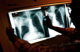 देश में तेजी से फैल रही टीबी, सालाना पांच लाख की मौत