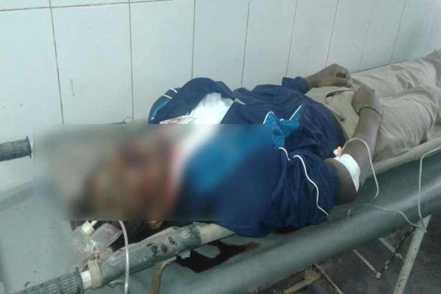 डिप्रेशन के शिकार एसएसबी जवान ने खुद को मारी गोली, इलाज के दौरान मौत