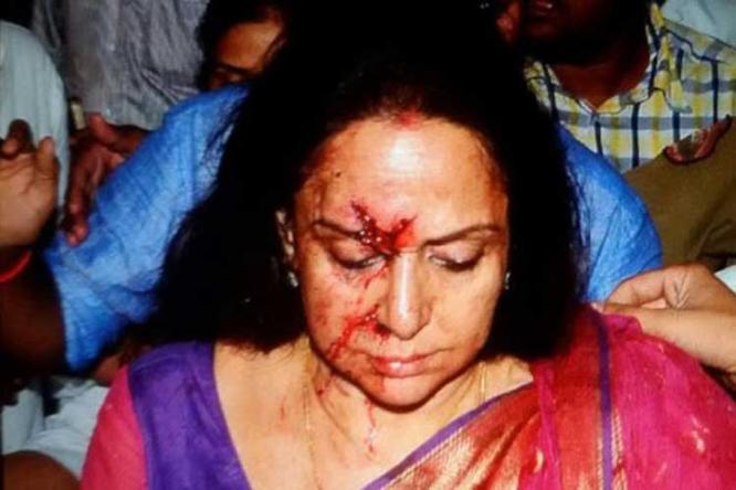 Hema Malini's driver arrested for over-speeding, negligent driving after car collision