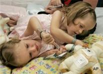 Conjoined twins prepare for surgery