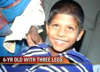 Kid with three legs to undergo corrective surgery