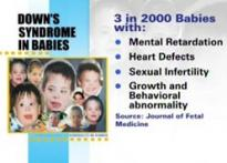 3 in 2000 babies born with Down's Syndrome