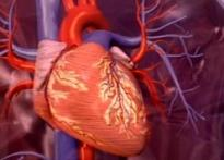 Are stents the only option after an angina attack?