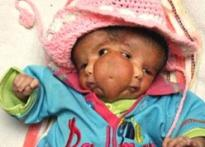 Miracle baby Lali becomes object of religious frenzy