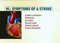 Know how to recognise symptoms of a stroke