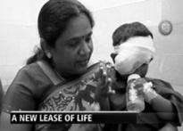 CJ: Humanitarian act restores sight for child