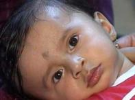 Baby with 4 heart defects, fighting for survival