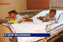 Twins separated by surgery recovering