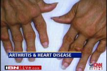 Arthritis increases chances of heart attacks