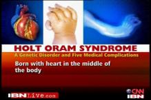 Holt Oram Syndrome: A rare genetic disease