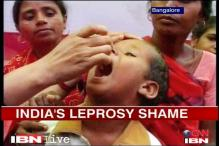 Leprosy cases on the rise in urban India