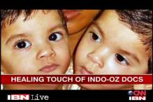 Indian, Aus doctors give new life to conjoined twins
