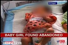 J&K: Help pours in for abandoned baby with cleft lip