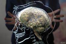 Nano particles protect brain from multiple sclerosis