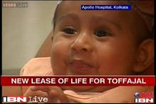 Eid gift for Tripura couple: Successful surgery on son who had 2 heads