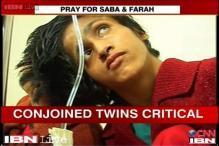 Bihar: Conjoined twins Saba, Farah in critical condition