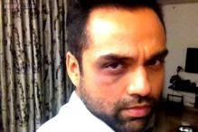 Abhay Deol takes on a 'giant record label', sports a black eye in protest at Screen Awards