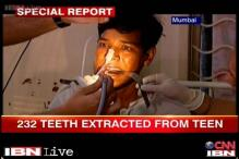 Mumbai: Doctors baffled after extracting 232 teeth from a 17-year-old's mouth