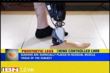 New sensors allow people to control limbs with their minds in Iceland