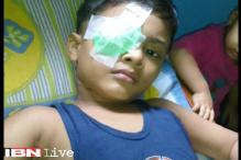 Mumbai: Class 1 student loses vision in one eye after classmate hits him with a pair of scissors