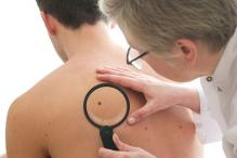 The number of moles on a person's right arm could indicate skin cancer risk