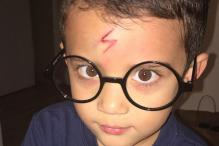 Mom Turns Her Four-year Old Son's Scar Into a Very Accurate Harry Potter Scar