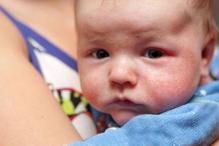 Antibiotics Aren't An Effective Treatment For Milder Forms of Eczema