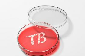 New Blood Test Identifies TB Infections Within Hours