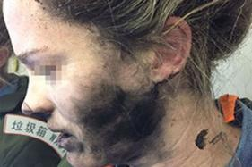 Woman Suffers Burns as Headphones Catch Fire During Flight to Australia
