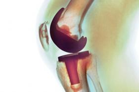 Need to Revisit Price Cap on Knee Implants: MTaI