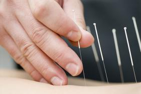 Thinking of Consulting an Acupuncturist This Fall?