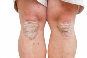 New Vaccine Hope For Psoriasis Patients