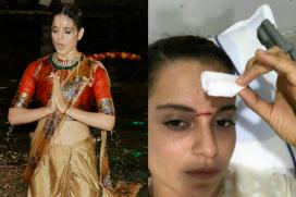 Kangana Ranaut Injured On Manikarnika Set; Gets 15 Stitches On Forehead