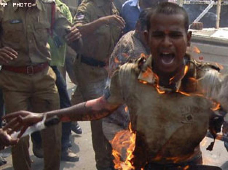 Telangana protestor succumbs to 80 pc burns