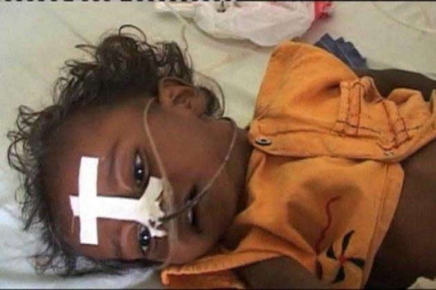 Encephalitis battle suffers from red tape in UP