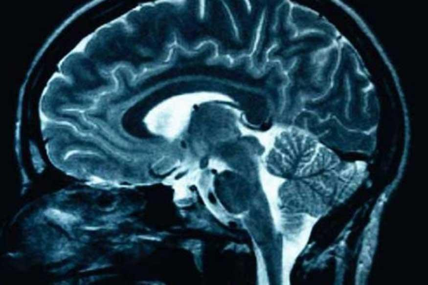 'Forgotten' Memories Can be Activated Using Magnetic Brain Stimulation